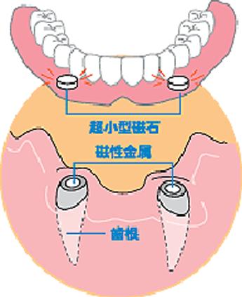 アタッチメント義歯 みずほ台さくらそう歯科