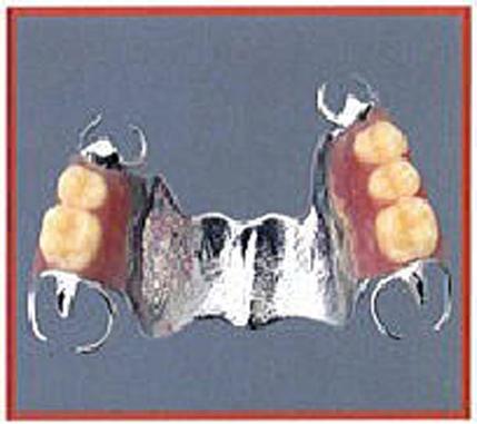 金属床義歯 部分入れ歯 みずほ台 さくらそう歯科