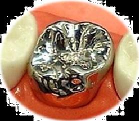 クラウン・奥歯 銀パラジウム冠