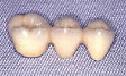 ブリッジ・奥歯 メタルボンドセラミックブリッジ